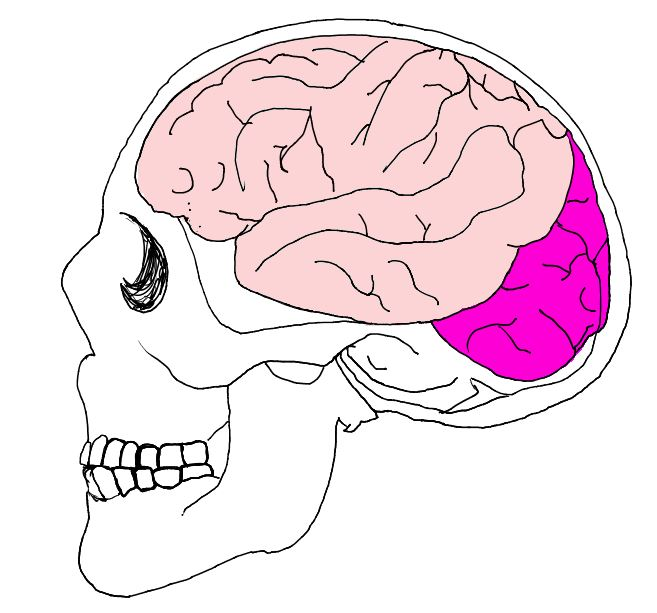 According to the Brain Injury Alliance the purple area is where many head injuries, including mine, often are injured and located.